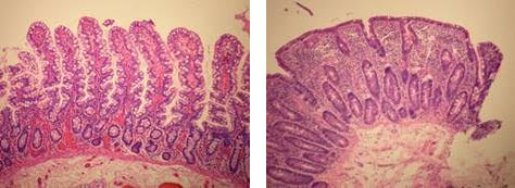 Healthy and damaged villi