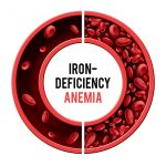 Iron deficiency anemia graphic of red blood cells